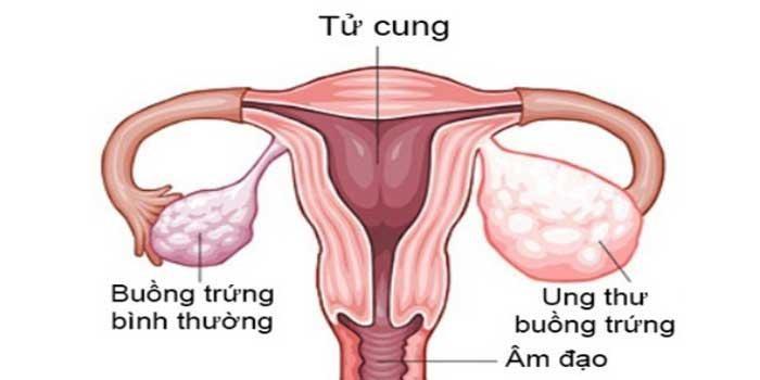 bi u nang buồng trứng có thai được không