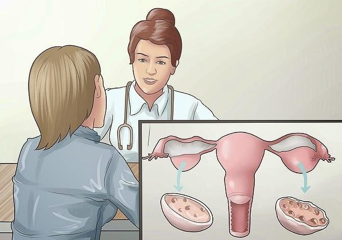 Hiểu hơn về căn bệnh u nang buồng trứng