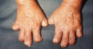 bệnh phong cùi có chữa được không