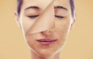 Những dấu hiệu làn da bạn đang yếu