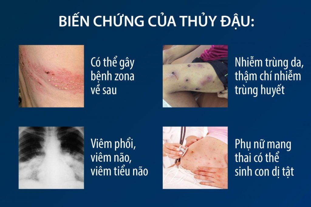 Bien-chung-benh-thuy-dau