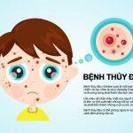 Tìm hiểu nguyên nhân và dấu hiệu ủ bệnh thủy đậu – Những biến chứng nguy hiểm