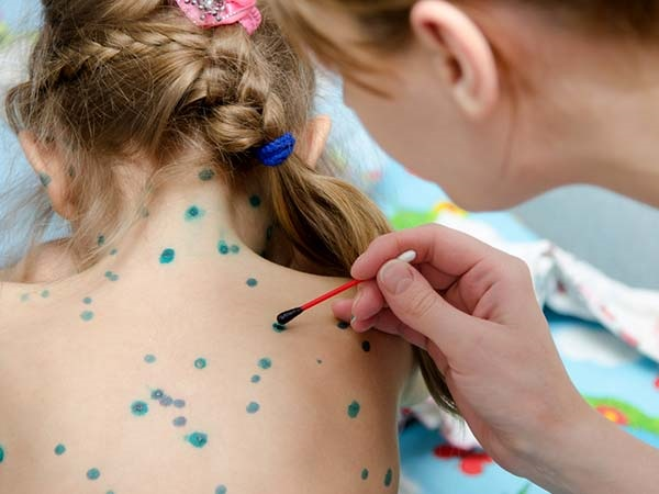 Bệnh thủy đậu xuất hiện ở mọi lứa tuổi đặc biệt là trẻ nhỏ