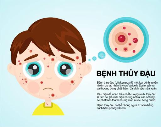 Dấu hiệu thường nhận thấy của bệnh thủy đậu